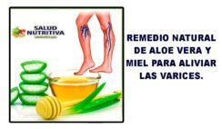 Remedio natural de aloe vera y miel para aliviar las varices