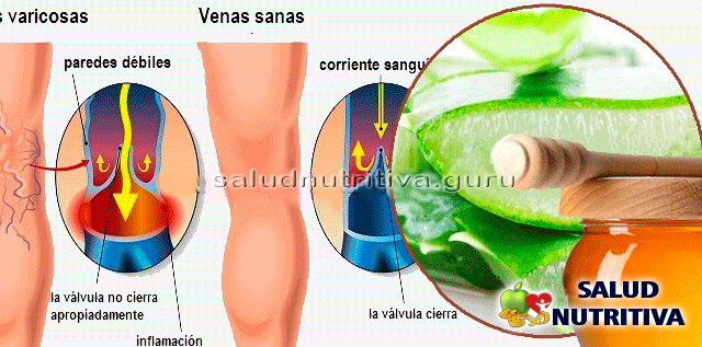Remedio casero natural de aloe vera para aliviar varices
